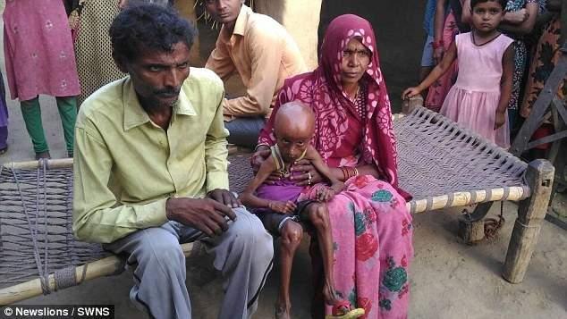 Один на восемь миллионов: парень из Индии стал дряхлым стариком (фото)