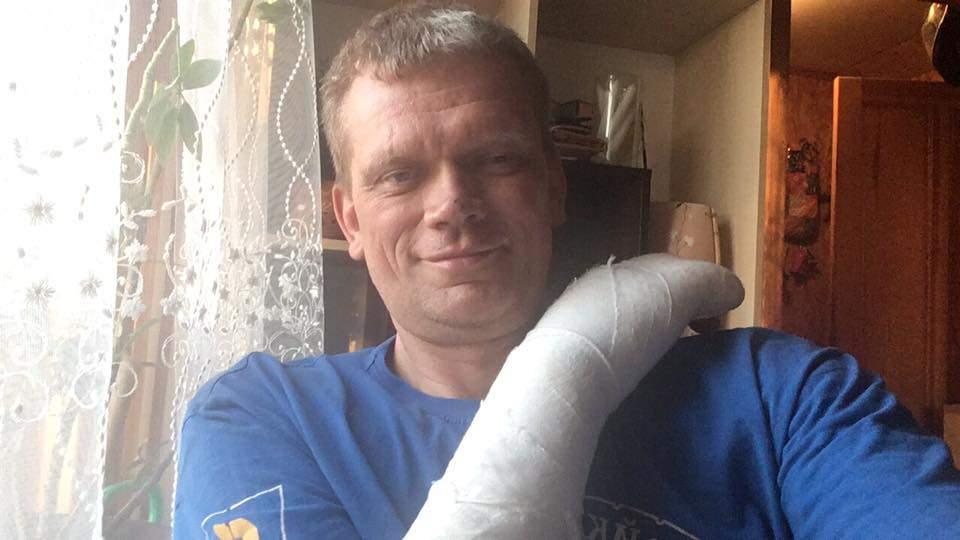 Экс-министр аграрной политики Украины Игорь Швайка попал в серьезное ДТП  (Фото)