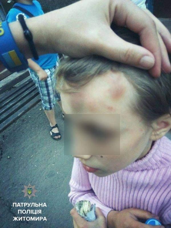 В Житомире на улице обнаружили избитого матерью ребёнка (фото)