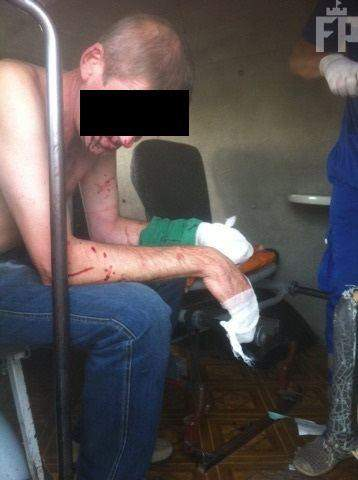 В Запорожье у мужчины в руках взорвался найденный пакет: пострадавшему оторвало пальцы (фото)