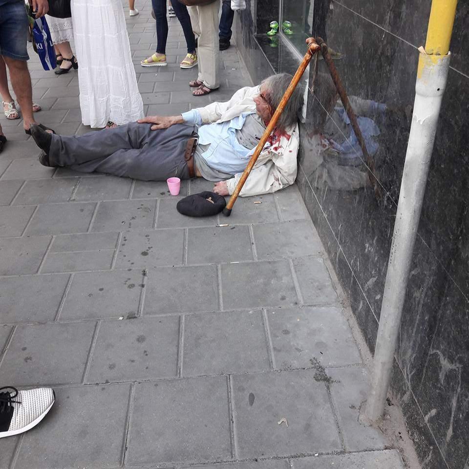 Во Львове мужчина с разбитой головой упал посреди улицы (фото)