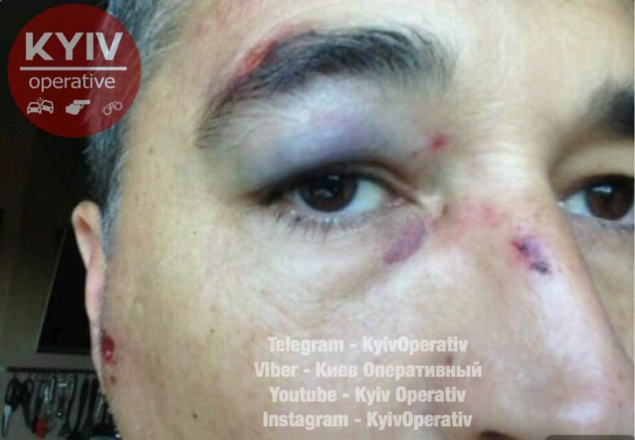 В столице водитель избил пешехода из-за сделанного замечания (Видео)