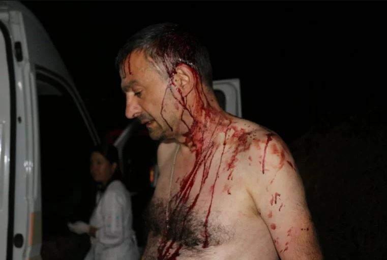 В Одессе обидчики жестоко избитого палками журналиста отправились под домашний арест
