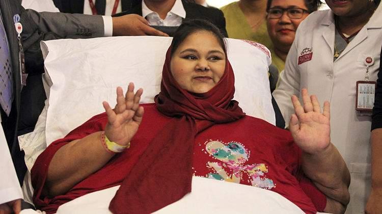 В ОЭА после похудения скончалась самая тучная женщина в мире