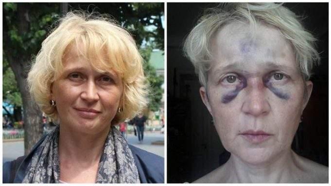 Преступников, которые напали на одесскую активистку Светлану Подпалую, задержали