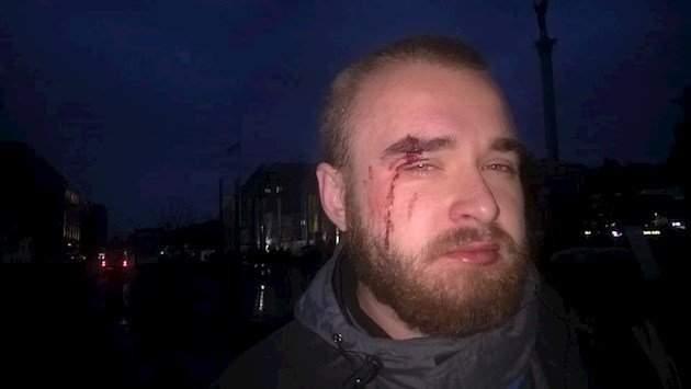 В столице был избит известный участник боевых действий (Фото)
