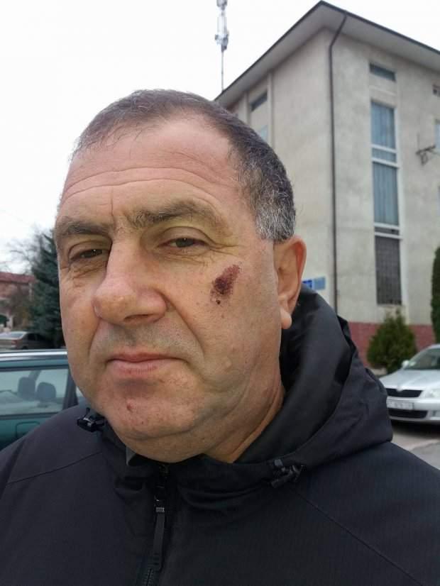 В Тернопольской области депутат от «БПП» избил местного предпринимателя (фото)