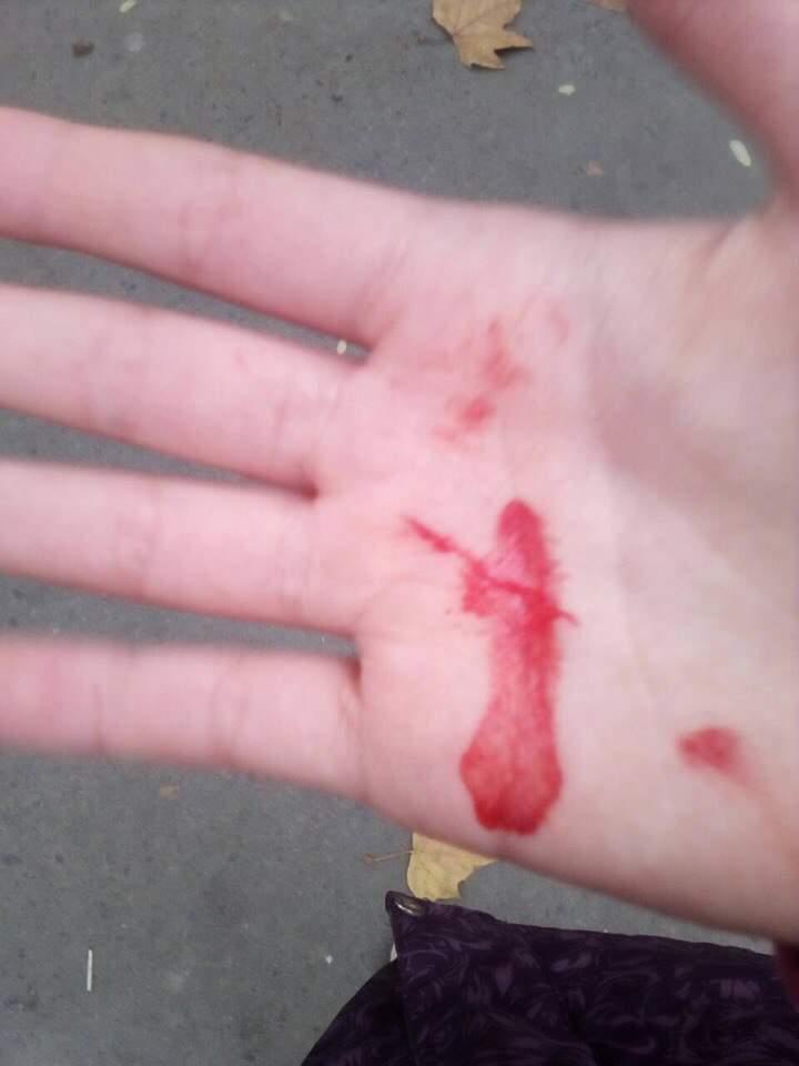 В Одессе неизвестный в черном нападает на детей