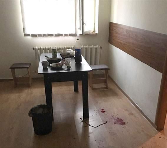 «Доигрался»: в Кременчуге мужчина лишился пальцев руки при взрыве гранаты (фото)