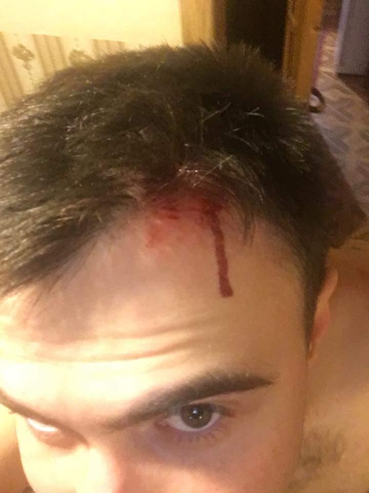 На Ивано-Франковщине напали на депутата от