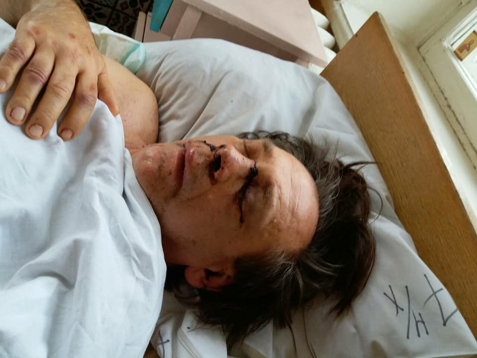 Возле одесского СИЗО избили правозащитника. Возможно били битами (фото)