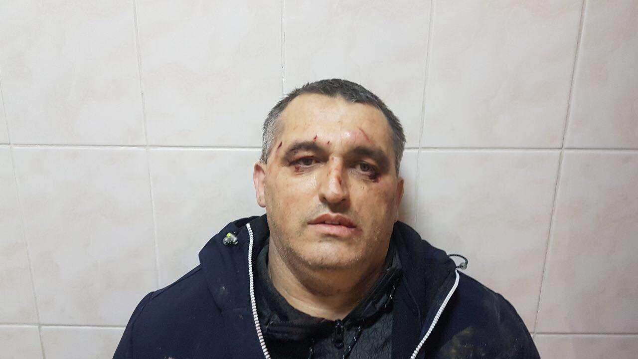 В Черновцах жестоко избили журналиста проекта