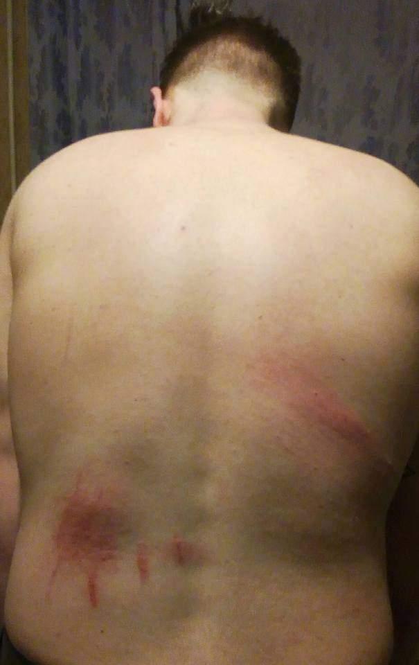 В Киеве радикалы избили журналиста во время Международного фестиваля о правах человека (фото)