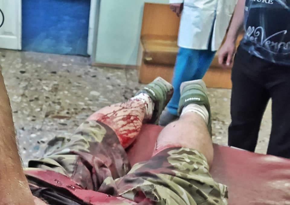 В центре Киева было совершено групповое нападение на ветерана АТО (фото)