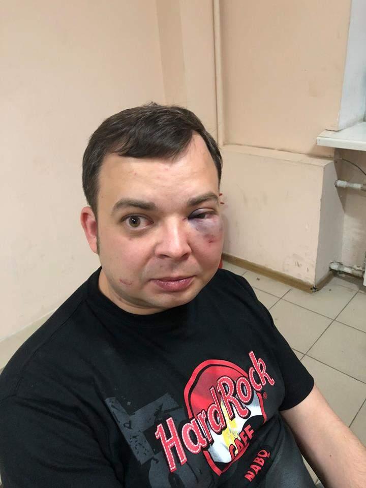 В Киеве серьезно избили старшего сына депутата Нестора Шуфрича (фото)