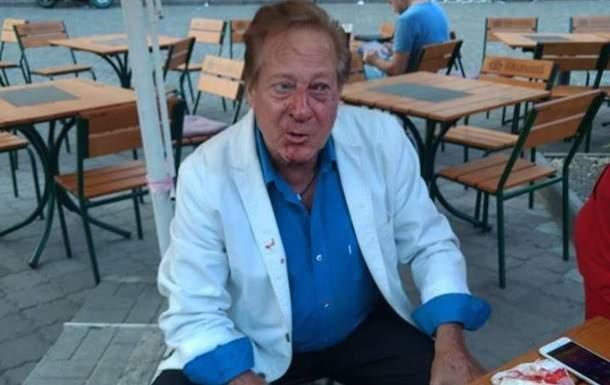 В Одессе неизвестный избил  американского певца Билла Уоррена