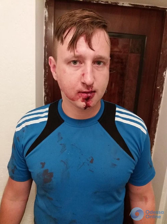 Избитый одесский журналист просит коллег быть осторожными