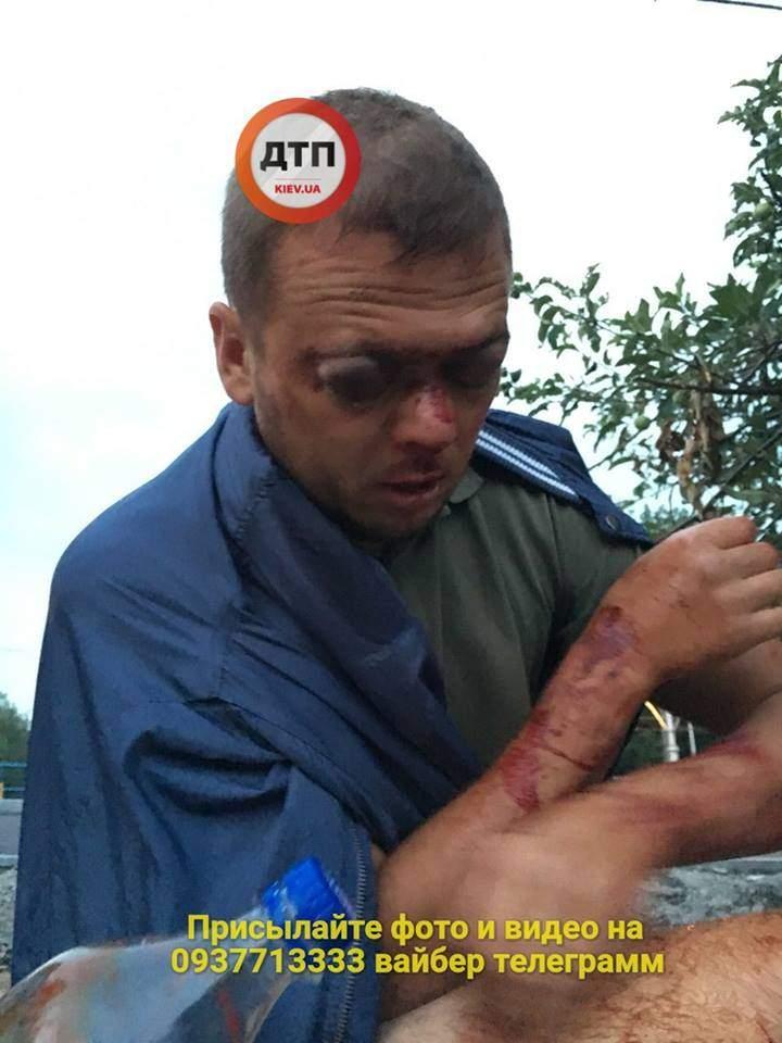 В Киеве неизвестные жестоко избили мужчину (фото)