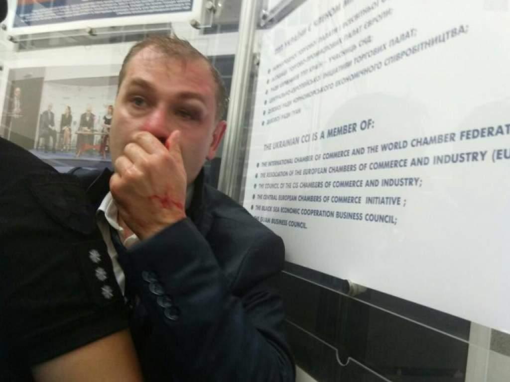 В Киеве националисты избили депутата (фото)