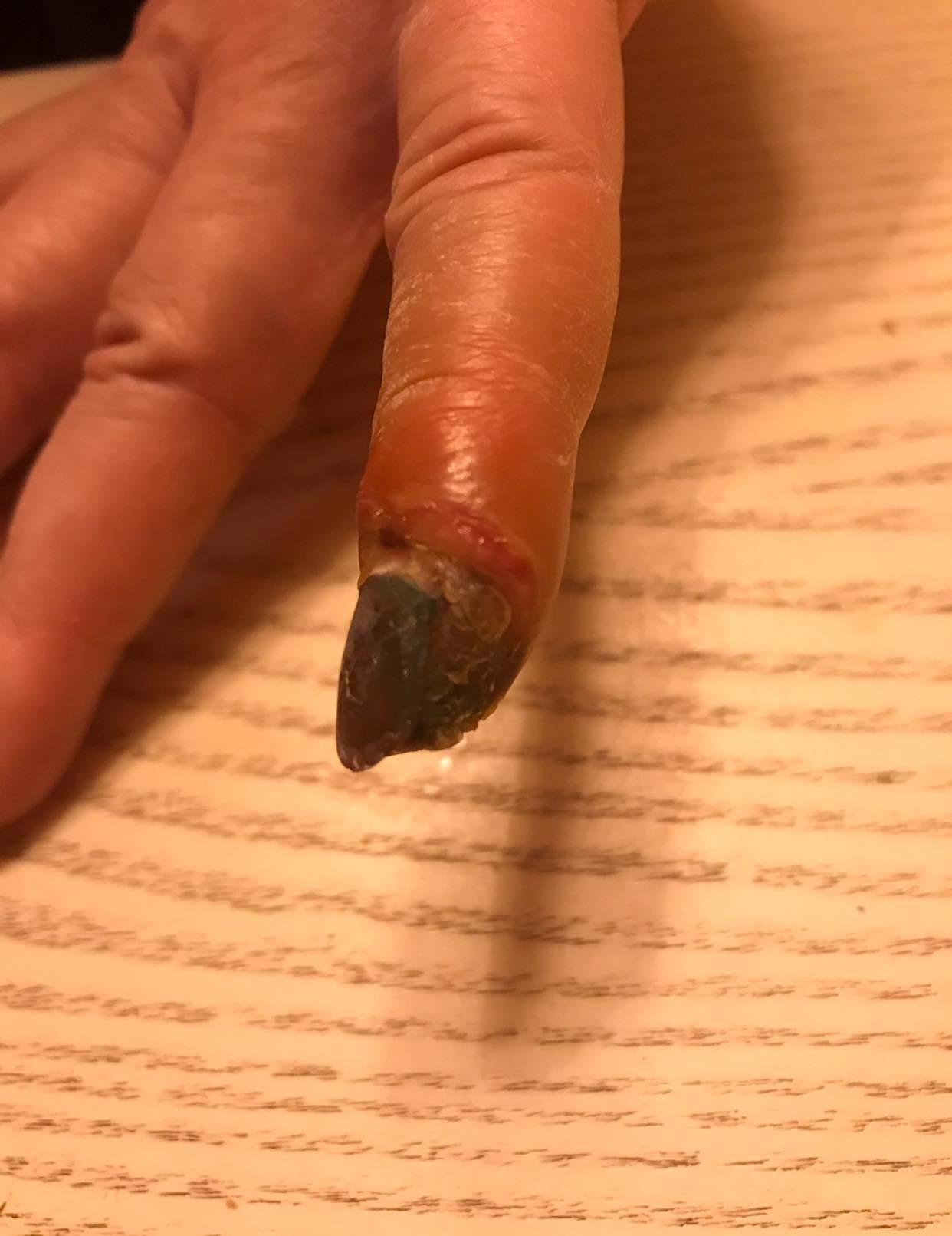 Удаляла бородавки, а за малым чуть не лишилась пальца: В Виннице дерматолог искалечила женщину (фото 18+)