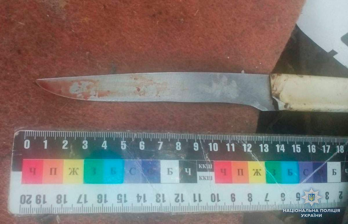 В Черновицкой области во время пьяного конфликта мать ударила сына ножом в живот (фото)