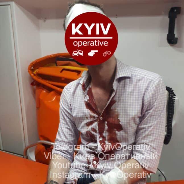 В Киеве пьяный мужчина ударил саблей случайного прохожего (фото)