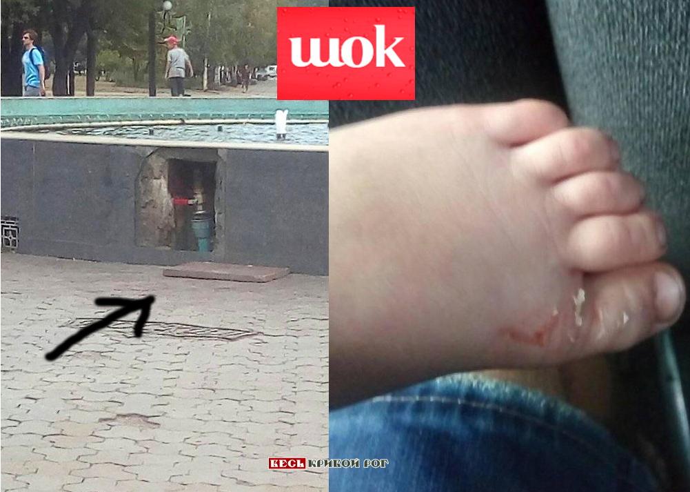 Упала плита с фонтана: В Кривом Роге ребёнок пострадал во время прогулки