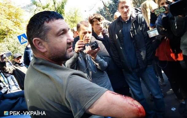 В результате стычки под зданием МВД пострадал человек