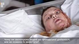 Херсонская активистка, которую АТОшники облили кислотой, скончалась в больнице