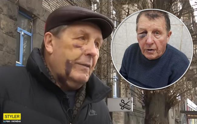 Следствие идет, а копы, избившие пенсионера продолжают служить