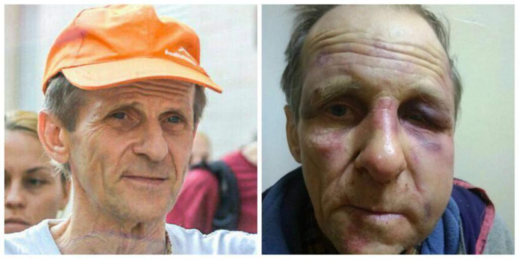 В Днепре жители многоэтажки регулярно избивают старика