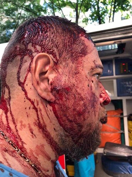 Избиение харьковского представителя Нацкорпуса: двое в кепках и очках били кастетами
