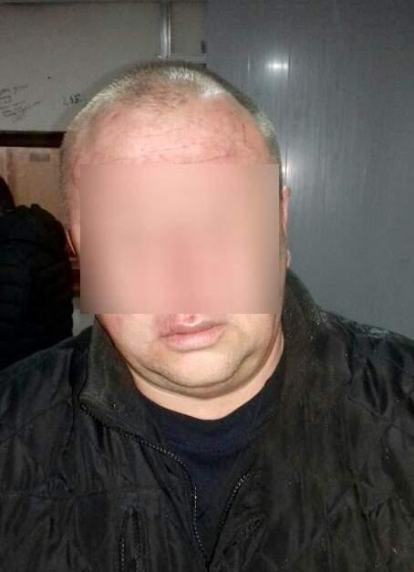 В Николаеве мужчина открыл огонь по соседям и ранил ребенка