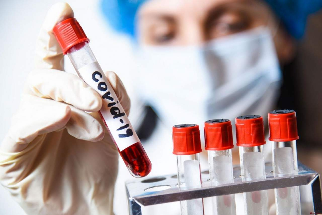 В Украине из-за пандемии в 2021 году эпидемии гриппа